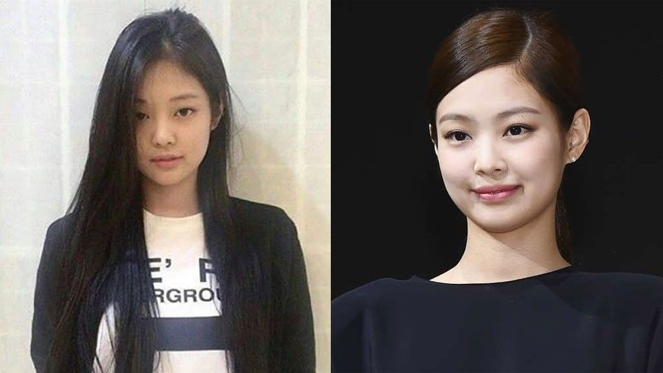 BLACKPINK's Jennie, Jisoo: Before and After Alleged Plastic Surgery